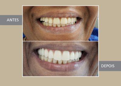 Tratamento de Reabilitação Oral